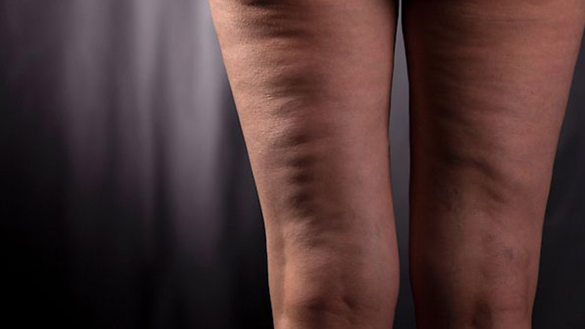 cellulit-oka-kezelese