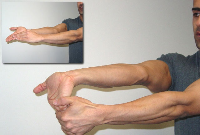 vékony karok 10 nap alatta