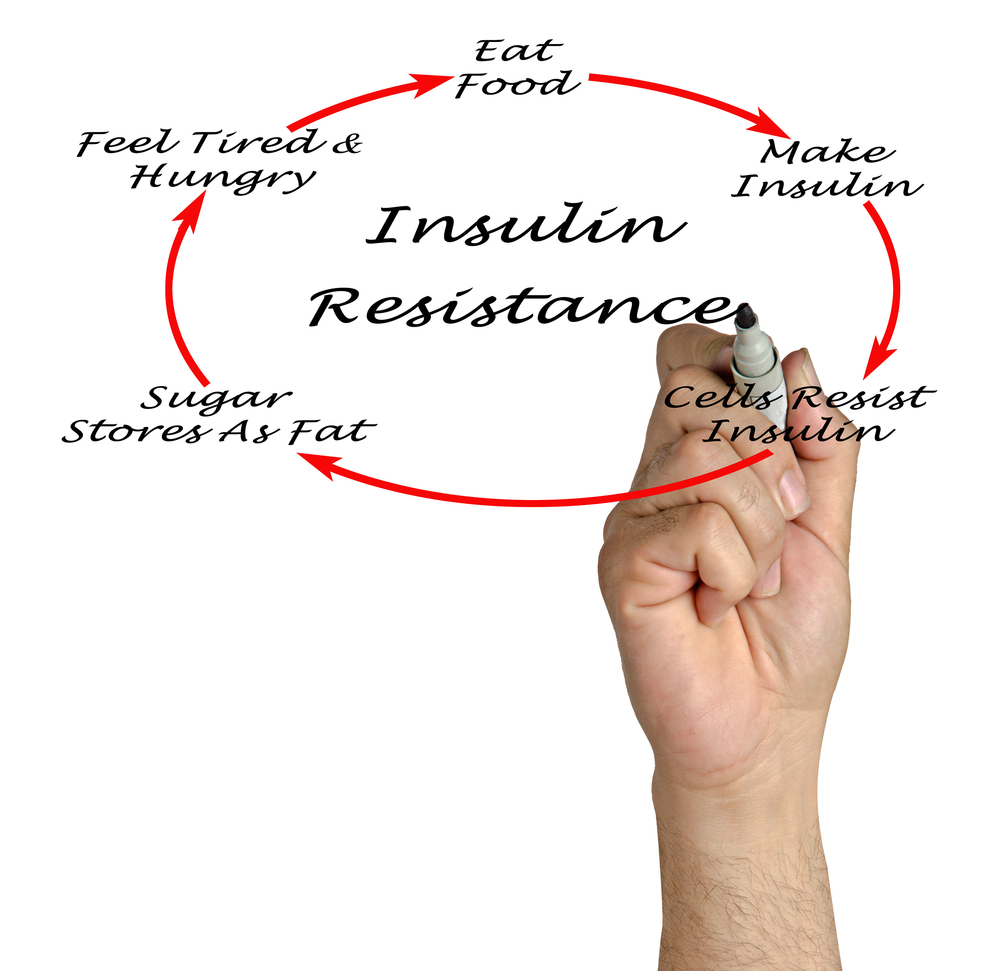 inzulin_rezisztencia_ferfiakban