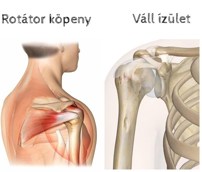 kenőcsök a vállízület osteoarthrosisához)